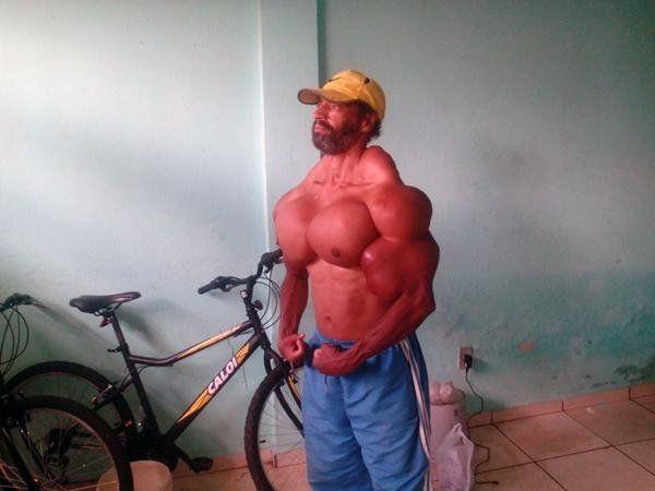Se inyecta aceite para parecerse a Hulk