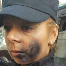 Pintaron con aerosol en el cuerpo y en la cara a una policía en la puerta de la morgue porteña