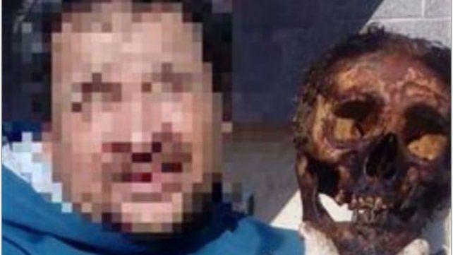 Revuelo en Sunchales por la foto de un hombre posando con un cráneo en el cementerio