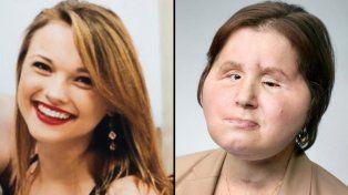 La historia de la chica que recibió un trasplante total de cara