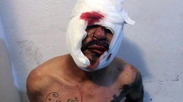 El hombre quedó detenido y ahora investigan si tenía antecedentes por abuso.