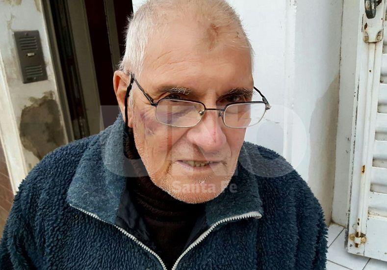 Visible. El hematoma del ojo derecho que sufrió Carlos Surjan Bilac
