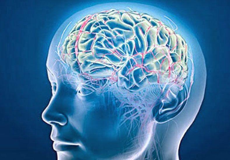 Para remarcar. Esta es una actividad a beneficio que realiza la Fundación para la Cobertura del Aneurisma Cerebral