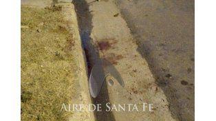 Un hombre fue atacado por dos pitbulls en Vieytes al 2800. Foto: Aire de Santa Fe