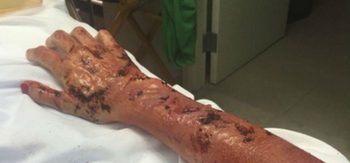 El brazo de la famosa actriz totalmente quemado