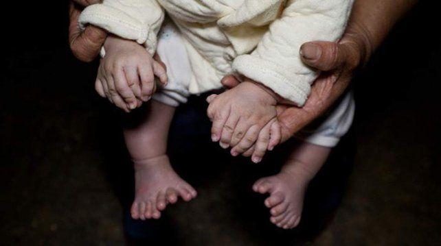 El niño tiene 15 dedos en sus manos y 16 en los pies. Fotos: getty images El niño tiene 15 dedos en sus manos y 16 en los pies. Fotos: getty images