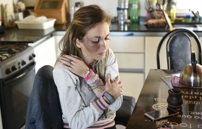 Rastros de la golpiza. Así le quedó el pómulo derecho a la madre atacada a golpes. (Foto: Héctor Río)