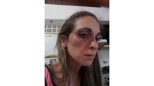 Rastros de la golpiza. Así le quedó el pómulo derecho a la madre atacada a golpes. (Foto de Facebook)