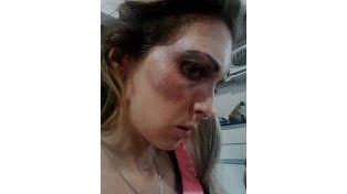 Rosario: le quisieron arrebatar a su hija a golpes y descargó toda su furia en Facebook