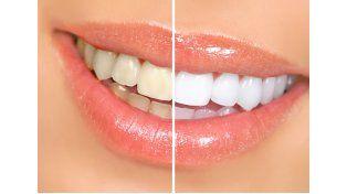 Por qué se ponen amarillos los dientes y qué se puede hacer para evitarlo