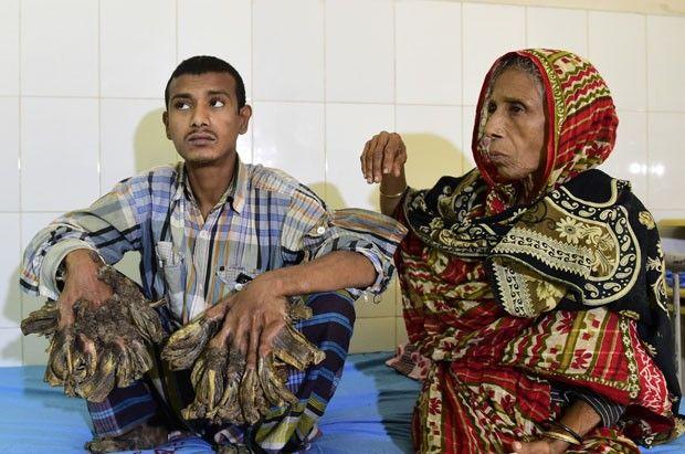 """Hospital de Bangladesh prepara la operación del """"hombre árbol"""""""