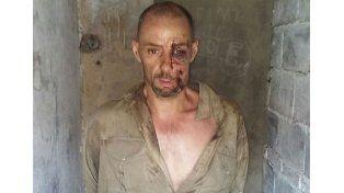 La foto de martín Lanatta tras ser detenido. COn golpes por el vuelco producido por el accidente sobre la ruta n1.
