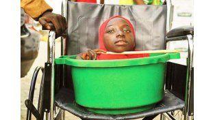 Nació sin cuerpo y vive en un balde, pero se siente afortunada de estar viva