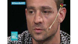Chano admitió que es adicto, pero negó estar drogado la noche del accidente
