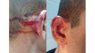 Hirieron con un balazo en la cabeza a un suboficial de la Policía de Acción Táctica en Santa Fe