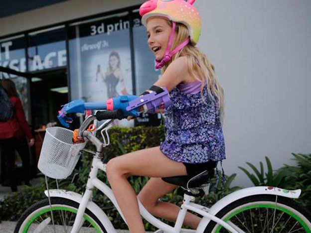 Impresión en 3D permite a niña tener prótesis de mano