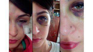 Su ex la golpeó por celos y lo contó por Facebook