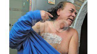 Herida. El taxista muestra las marcas en su cuerpo luego del ataque del domingo.