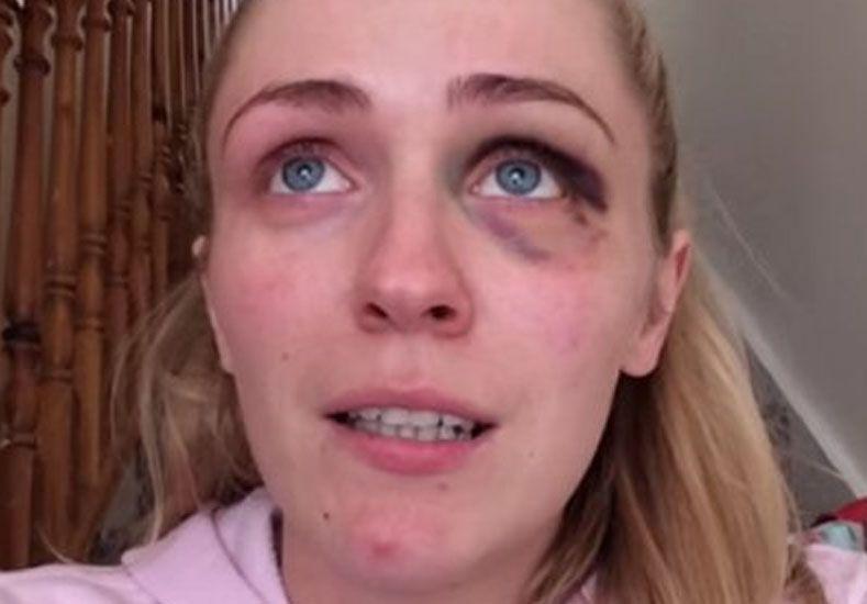 Su marido le era infiel y le pegaba: contó su calvario en un video