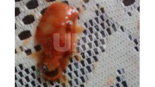 La Assal confirmó que lo encontrado en el puré de tomates no era un dedo