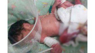 Operaron a la beba quemada: Se preservó la articulación del tobillo