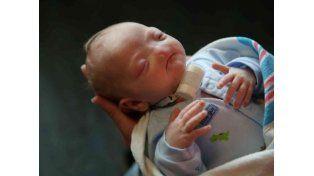 Una bebé nació sin nariz debido a una extraña condición