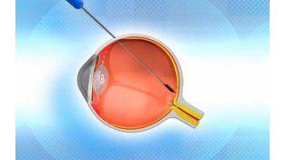 Una compañía israelí creó una retina biónica que restituye la vista a ciegos