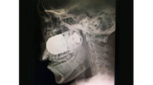 Extraen granada del rostro de un soldado, un caso excepcional
