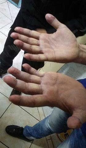 Así están las manos de Ibar Pérez Corradi: habría intentado borrarse las huellas digitales