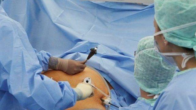 La cirugía contra la obesidad mejora la diabetes en un 65 por ciento de los casos