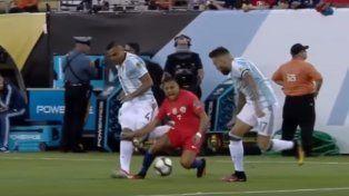 No apto para impresionables: así está el tobillo de Alexis Sánchez