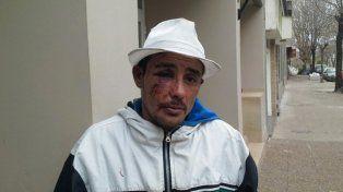 Investigan en Casilda una brutal paliza a un hombre que involucra a ocho policías