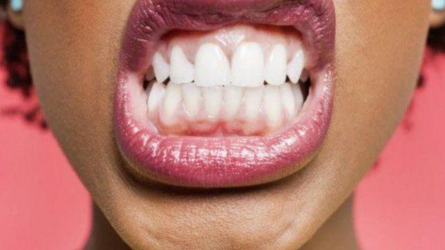Blancorexia: los peligros que reviste la obsesión por dientes más blancos