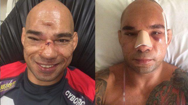 Así le quedó el cráneo al luchador que había sufrido una fractura en un combate