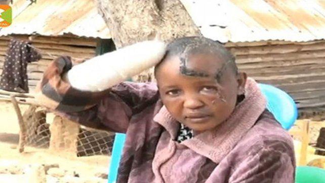 Le cortó las manos con un machete con por no darle hijos