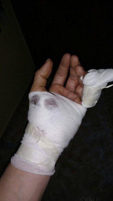 Grave lesión a un policía durante la aprehensión de un violento delincuente