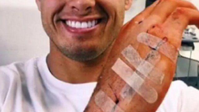 Así le quedó la mano a una estrella del fútbol tras caerse por las escaleras