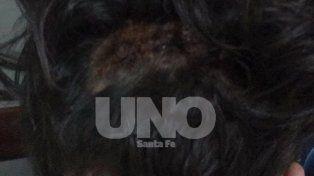 Cortes. En la parte posterior de la cabeza con golpes en el cuero cabelludo.