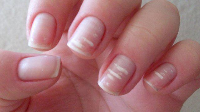 La verdadera razón por la que aparecen manchas blancas en las uñas