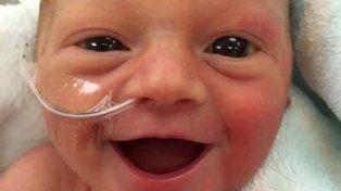 La imagen de esta bebé prematura que es pura sonrisa dio vuelta al mundo