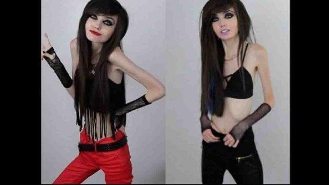Polémica por una youtuber que promueve la anorexia