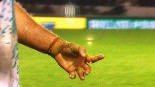 Rugby: escalofriante lesión de un jugador en una de sus manos