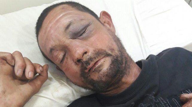 Se buscan familiares de un hombre no identificado internado en el Hospital Iturraspe de la ciudad de Santa Fe