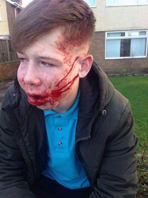 Las consecuencias del bullying en un adolescente: debió ser hospitalizado por los brutales golpes