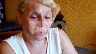 Moretones. Nely, de 61 años, exhibe las marcas de los golpes en su ojo derecho y en la frente.