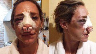 Ella perdonó a su ex, el volvió a su casa y le desfiguró la cara
