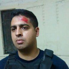 Uno de los policías heridos en la comisaría7ª.