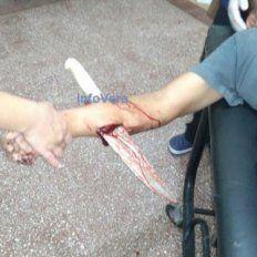 Vera: brutal ataque a un empleado municipal