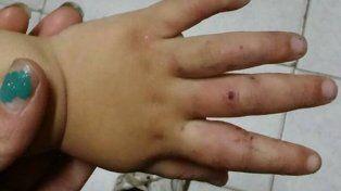 Denunciaron que una nena de 3 años fue desfigurada por su padrastro