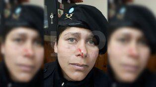 Agredieron en la cara a una suboficial cuando fueron arrestados